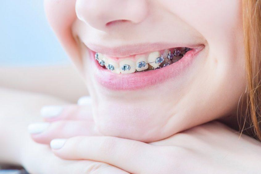 The results you can achieve by getting dental braces